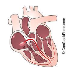 Herzleidensystem