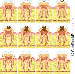intern, struktur, zahn