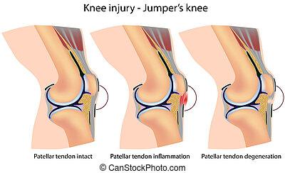 Jumpers Knie-Anatomy