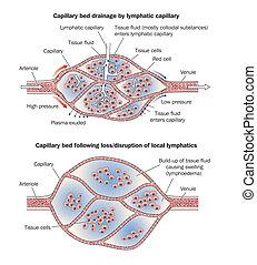 kapillargefäß, lymphoedema, bett