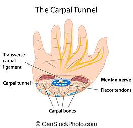 Karpaltunnelsyndrom, Eps8