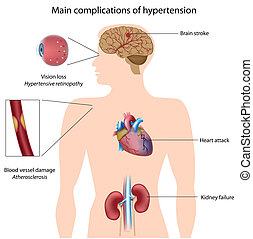 Komplikationen von Hypertension, Eps8