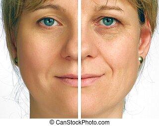Korrektur der Falten - Halbes Gesicht