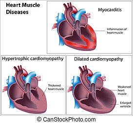 Krankheiten des Herzmuskels, Eps8