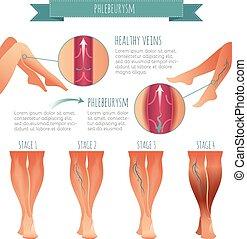 krankheiten, infographic., phlebology, vektor, vene, buehne