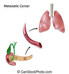 Krebs breitet sich durch Blut aus