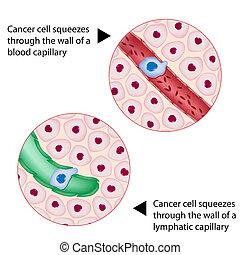 Krebszellen drücken durch das Gefäß