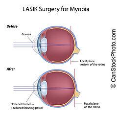Lasik Augenoperation für Myopia, Eps8