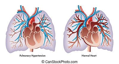 lungen, bluthochdruck