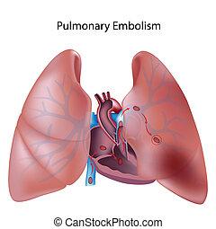 Lungenembolie, Eps10