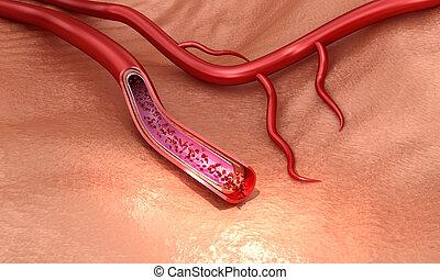 makro, genau, erythrocytes, abbildung, aufgeschnitten, medically, ader, 3d