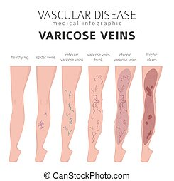 medizin, varicose, infographic, design, set., geäder, vaskulär, ikone, behandlung, diseases., symptome