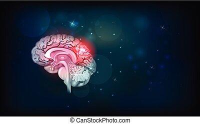 menschliche Gehirnprobleme