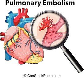 Menschliche Lungenembolie.