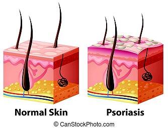 menschliche , psoriasis, normal, haut, diagramm