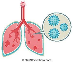 menschliche , weißes, ausstellung, diagramm, virus, lungen, hintergrund