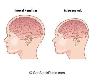 Mikrozephalie.