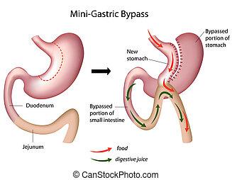 mini, gastrisch, chirurgie, umgehung, eps8