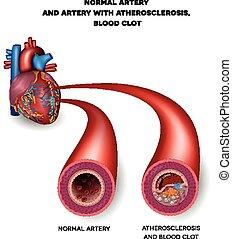 Normale Arterie und ungesunde Arterie mit Blutgerinnsel