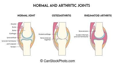 Normale und arthrische menschliche Gelenke.
