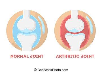 Normaler und arthrischer menschlicher Gelenk anatomisch infografisch