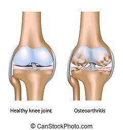 Osteoarthritis am Kniegelenk Eps10