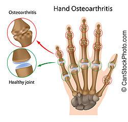 Osteoarthritis der Hand, Eps8