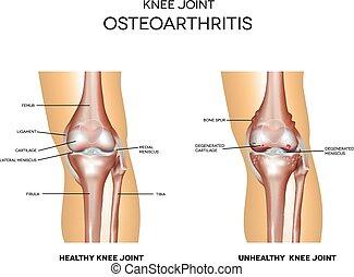 Osteoarthritis und normales Gelenk.