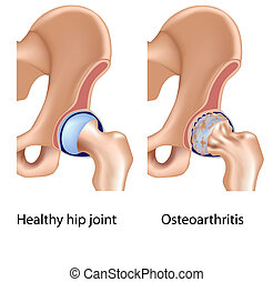 Osteoarthritis von Hip Joint Eps8