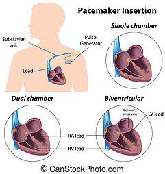 Pacemaker-Einführungs-OP, Eps8