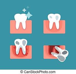 periodontal, schritte, krankheit, abbildung, buehne