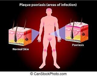 psoriasis, diagramm, ausstellung, platte, menschliche