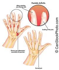 Psoriatische Arthritis.