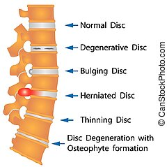 Rückenverhältnisse
