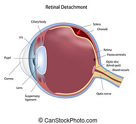 retinal, abtrennung, eps8