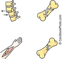 rgeöffnete, bones., rückgrat, kaputte , spinal, dislocation., verletzungen, set., wirbel, rgb, vektor, koerper, accident., freigestellt, fracture., medizinische ikon, condition., treatment., farbe, teil, illustrationen