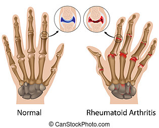 Rheumatoid Arthritis der Hand, Eps8