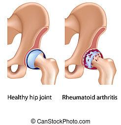 Rheumatoid Arthritis in Hüftgelenk
