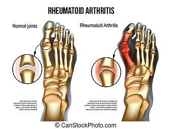 Rheumatoide Arthritis Knochen des Fußes
