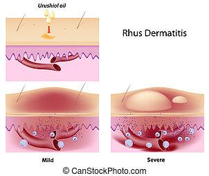 Rhus Kontaktdermatitis, eps8