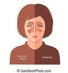 Sinusitis-Krankheit.