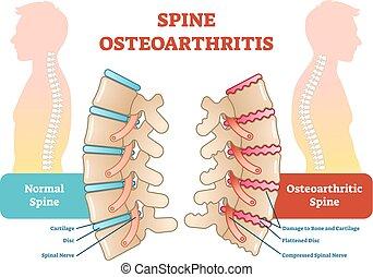 Spine osteoarthritis anatomische Vektorgrafik.