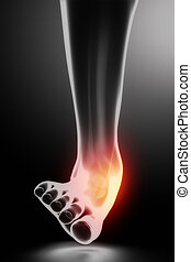 sprained, knöchel, schwarz, röntgenaufnahme