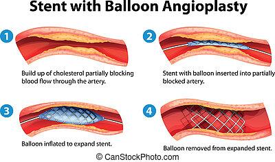 Stent angioplastische Prozedur.