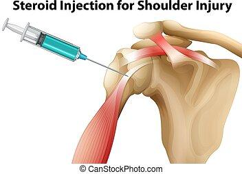 steroid, schulter, verletzung, spritze