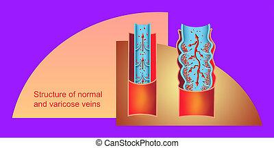 struktur, normal, veins., varicose, seniorin, geäder, legs.