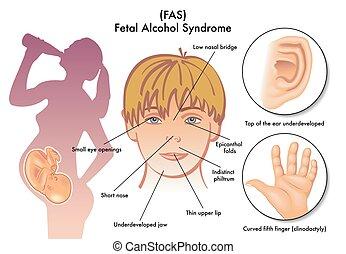 syndrom, fötal, alkohol
