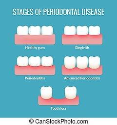tabelle, krankheit, periodontal