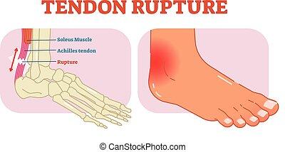 Tendon rupture anatomisches Beispiel, Vektordiagramm, pädagogisches medizinisches Schema.