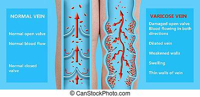 varicose, geäder, älter, legs., struktur, weibliche , normal, veins.